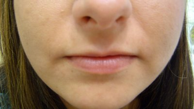 Lip correction