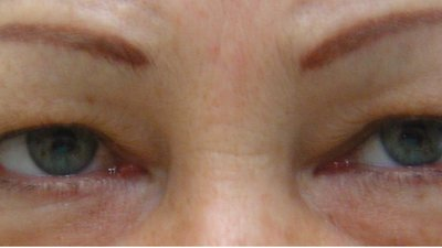 Eyelid correction